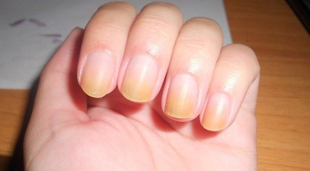Желтые ногти на пальцах рук