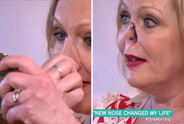 Чрезмерное увлечение загаром довело женщину до дыры в носу: Яндекс ...   416x617